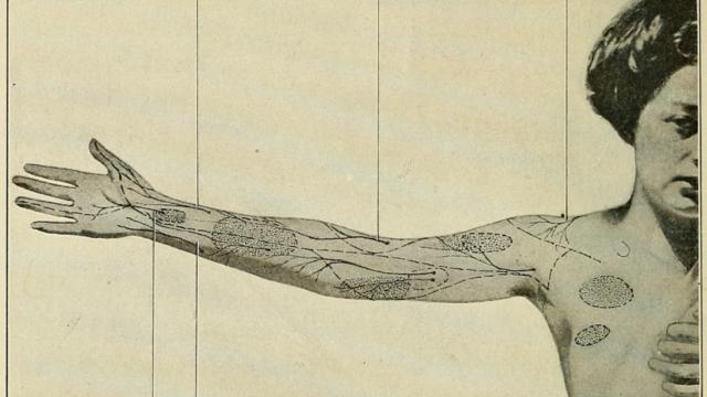 Cicatrix